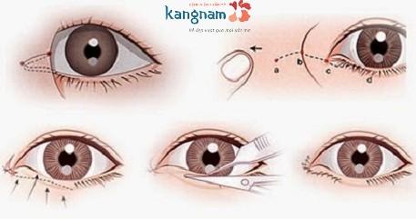 thẩm mỹ mắt to có để lại sẹo không-1