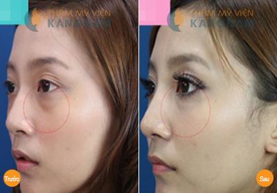 Phẫu thuật cắt bọng mắt giá bao nhiêu tiền tại BVTM Kangnam? 5