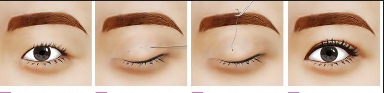 TOP 3 cách chữa sụp mí mắt nhanh và hiệu quả nhất 2015 11