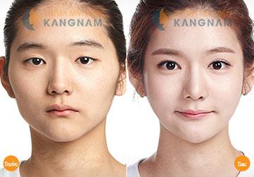 Phẫu thuật mở rộng góc mắt trong tạo mắt to tròn cuốn hút 1