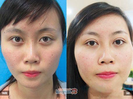 Khách hàng chia sẻ kết quả cắt bọng mỡ mắt tại Kangnam
