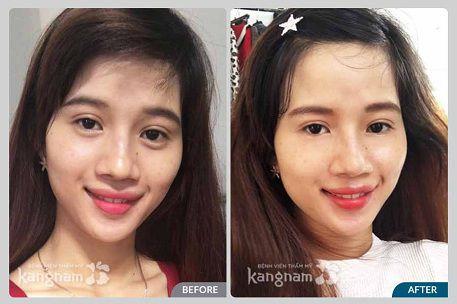 Phẫu thuật cắt bọng mỡ mắt tại Kangnam mang lại hiệu quả bất ngờ