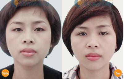 Top 4 cách nâng mí mắt bị sụp đơn giản và hiệu quả nhất 4