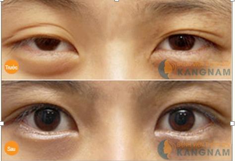 Lấy mỡ mí mắt (Cắt bọng mỡ mí mắt) dưới công nghệ Hàn Quốc567