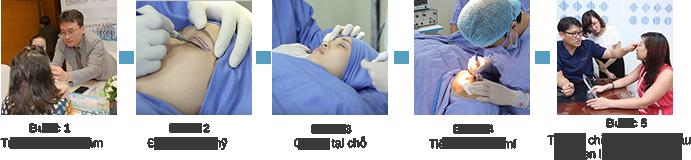 Lấy mỡ mí mắt Hàn Quốc trẻ hóa đôi mắt - Tạo mắt đẹp toàn diện6799