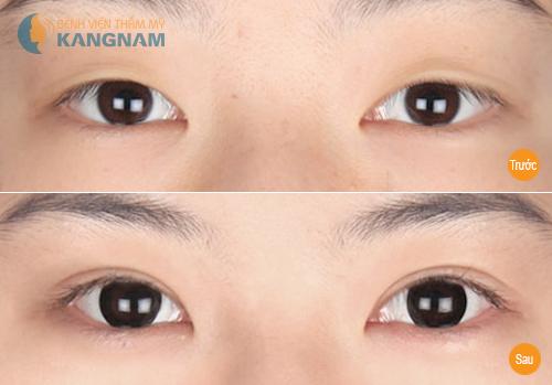 Kẹp tạo mắt 2 mí có đem lại hiệu quả như ý không? 11
