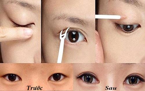 Kết quả dùng keo tạo mắt 2 mí tại Kangnam