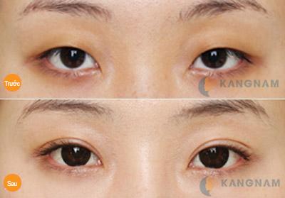 Cách tạo mắt 2 mí đẹp tự nhiên cuốn hút mọi ánh nhìn 7