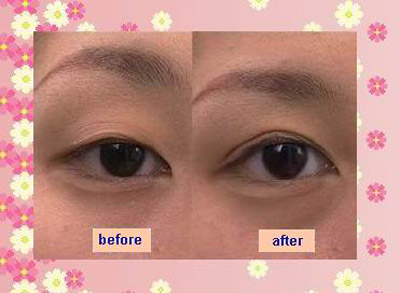 Kẹp tạo mắt 2 mí có đem lại hiệu quả như ý không? 3