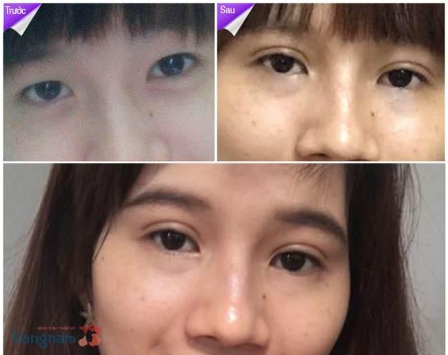 Bấm mí mắt có nguy hiểm không?789