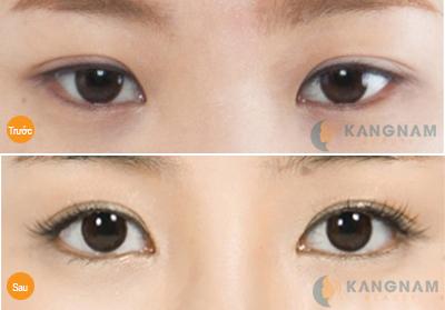 Khắc phục mắt xếch toàn diện chỉ sau 40 phút tại Kangnam