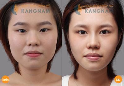 Kết quả chỉnh hình mắt xếch tại Kangnam