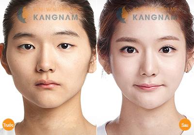 Kết quả thẩm mỹ mắt xếch tại Kangnam
