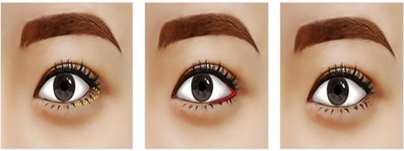 Mở rộng góc mắt ngoài tạo đôi mắt to tròn đẹp toàn diện 7