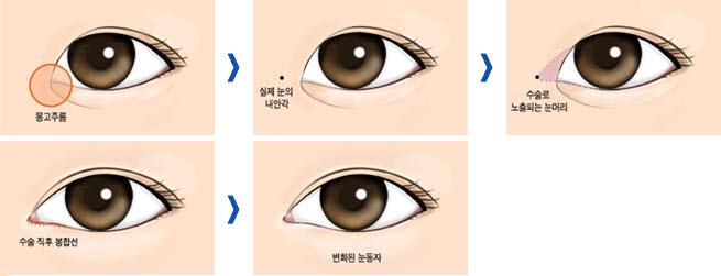 Phẫu thuật mở rộng góc mắt trong tạo mắt to tròn cuốn hút 8
