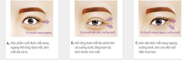 Quy trình thẩm mỹ mắt xếch tại Kangnam