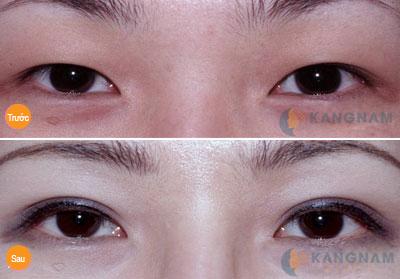 Bấm mí mắt ở đâu đẹp nhất hiện nay?