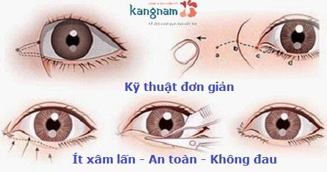 Thẩm mỹ mắt to có đau không 4