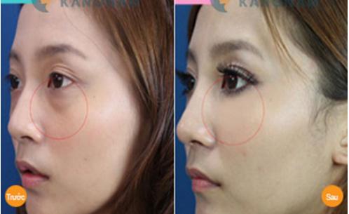 Cách trị bọng mắt hiệu quả và nhanh nhất hiện nay?9