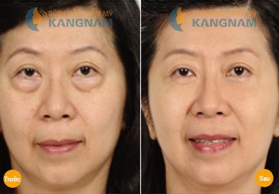 Cách trị bọng mắt hiệu quả và nhanh nhất hiện nay? 11