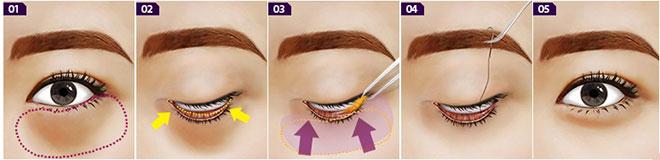 Cách trị bọng mắt hiệu quả và nhanh nhất hiện nay? 2