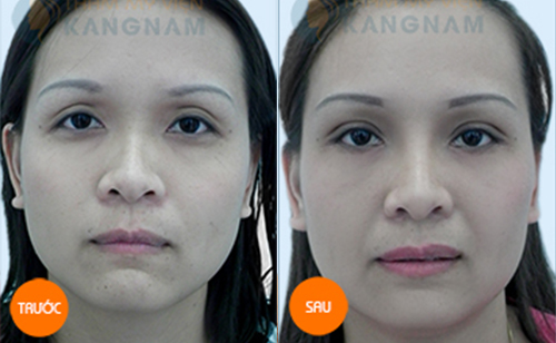 Cách trị bọng mắt hiệu quả và nhanh nhất hiện nay? 13
