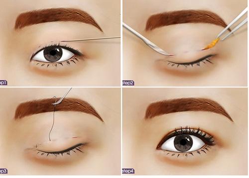 Da mắt bị chùng - Nên cắt mí hay bấm mí? Chuyên gia chia sẻ 3