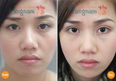 Cắt bọng mỡ mắt và da thừa có thể tiến hành cùng lúc được không? 9