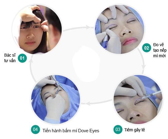 Quy trình nhấn mí mắt Hàn Quốc Dove Eyes tại Kangnam
