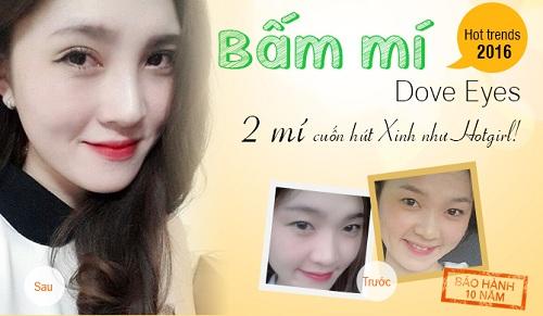 Bấm mí Hàn Quốc Dove Eyes - xinh như SAO với bảo hành 10 năm