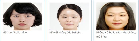 Bấm mí Hàn Quốc2