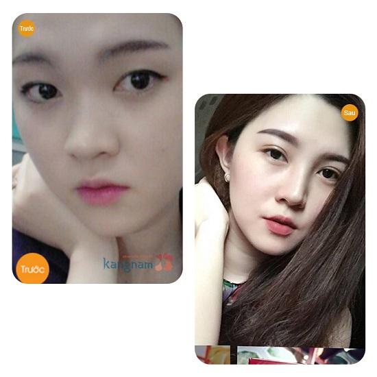 Bấm mí mắt Dove Eyes tại BVTM Kangnam