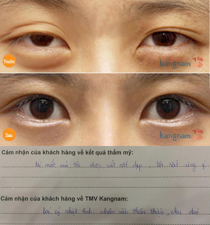 Cách chữa bọng mỡ mắt dưới NHANH và HIỆU QUẢ nhất 7
