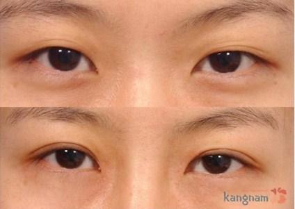 Cách tạo mắt 2 mí bằng bấm mí đang được ưa chuộng