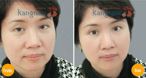 Cắt bọng mỡ mắt và da thừa có thể tiến hành cùng lúc được không? 7