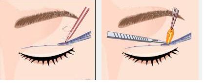 Cắt bọng mỡ mắt và da thừa có thể tiến hành cùng lúc được không? 6