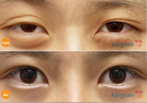 Lấy mỡ mí mắt478