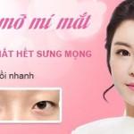 Lấy mỡ mí mắt Hàn Quốc trẻ hóa đôi mắt – Tạo mắt đẹp toàn diện