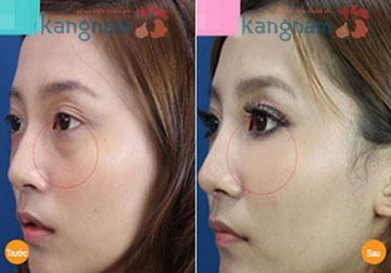 Phẫu thuật cắt mỡ mắt bao lâu thì lành? 5
