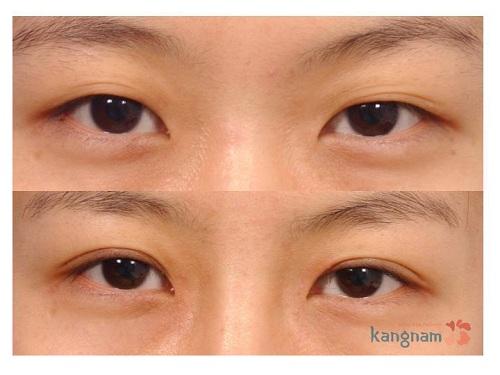 Phẫu thuật cắt mỡ mắt bao lâu thì lành? 9