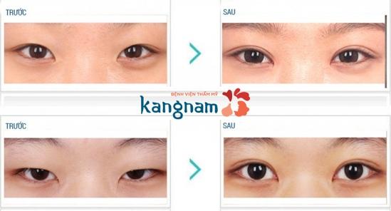 Kết quả thẩm mỹ mắt Hàn Quốc tại Kanganam