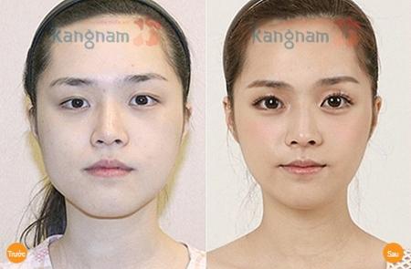Sự thay đổi bất ngờ của khách hàng sau thẩm mỹ mắt to tại Kangnam