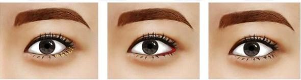 Mô hình mô phỏng phẫu thuật thẩm mỹ mắt to Hàn Quốc