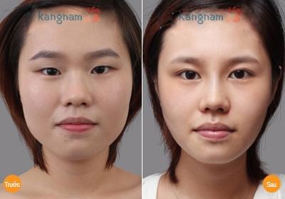 Minh Hà chia sẻ kết quả sau phẫu thuật mắt to tại Kangnam