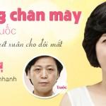 Nâng chân mày Hàn Quốc – Tạo đôi mắt thanh thoát trẻ trung