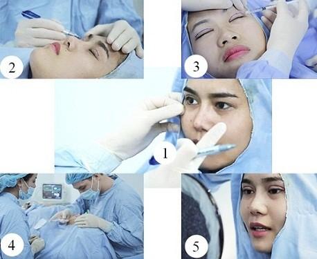 Bấm mí mắt có đau không phụ thuộc vào quy trìn bấm mí