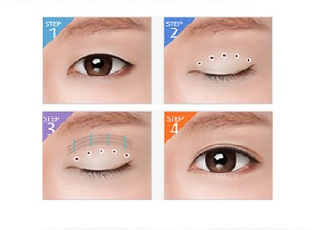 Bấm mí mắt có ảnh hưởng gì không2
