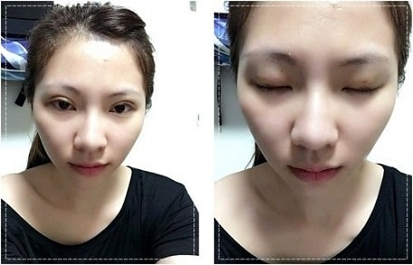 Bấm mí mắt có đau không có đau không là lo lắng của nhiều người