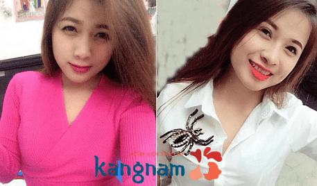 Đôi mắt trẻ trung, tươi sáng hơn nhờ bấm mí mắt tại Kangnam