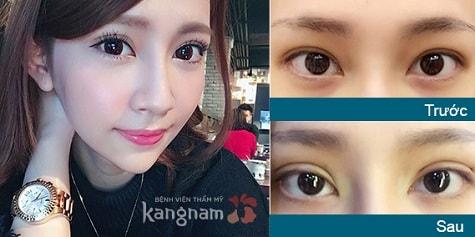 Bấm mí mắt có đau không? Khách hàng Kangnam chia sẻ